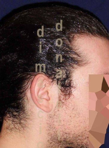 Chirurgia Estetica Orecchio | Orecchie a ventola posteriore - Prima dell'intervento