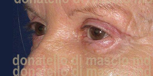 Chirurgia Plastica Estetica Viso | Blefaroplastica inferiore - dopo l'intervento