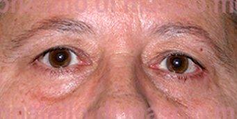 Chirurgia Plastica Estetica Viso | Blefaroplastica superiore e inferiore - prima dell'intervento