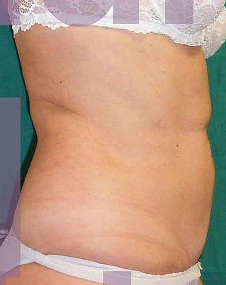 Chirurgia Estetica Addome | Liposcultura Addome - dopo l'intervento